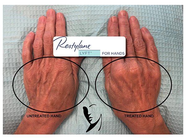 Restylane Hands before and after