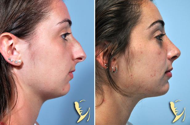 Rhinoplasty-before-after-50