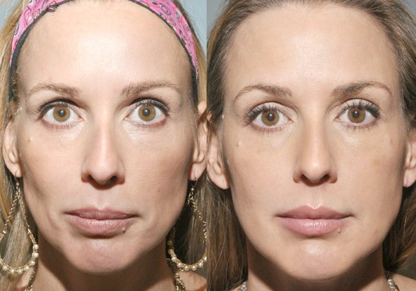 Sculptra Before and After 2