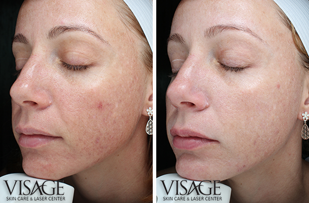 SkinCeuticals Advanced Pigment Peel