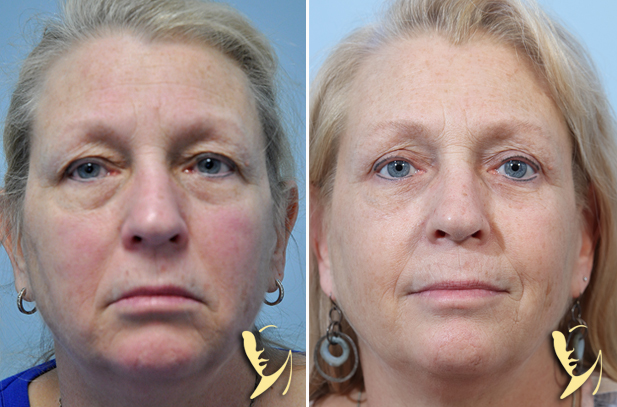 Upper-and-Lower Eyelid-Before-and After-60