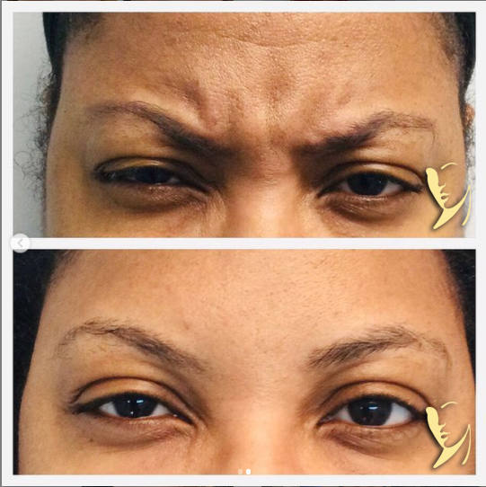 Wrinkle relaxing treatment 2