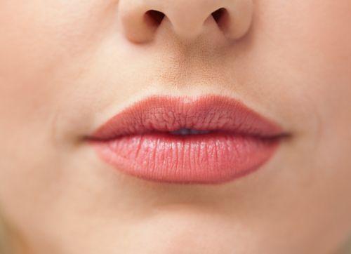lip filler image