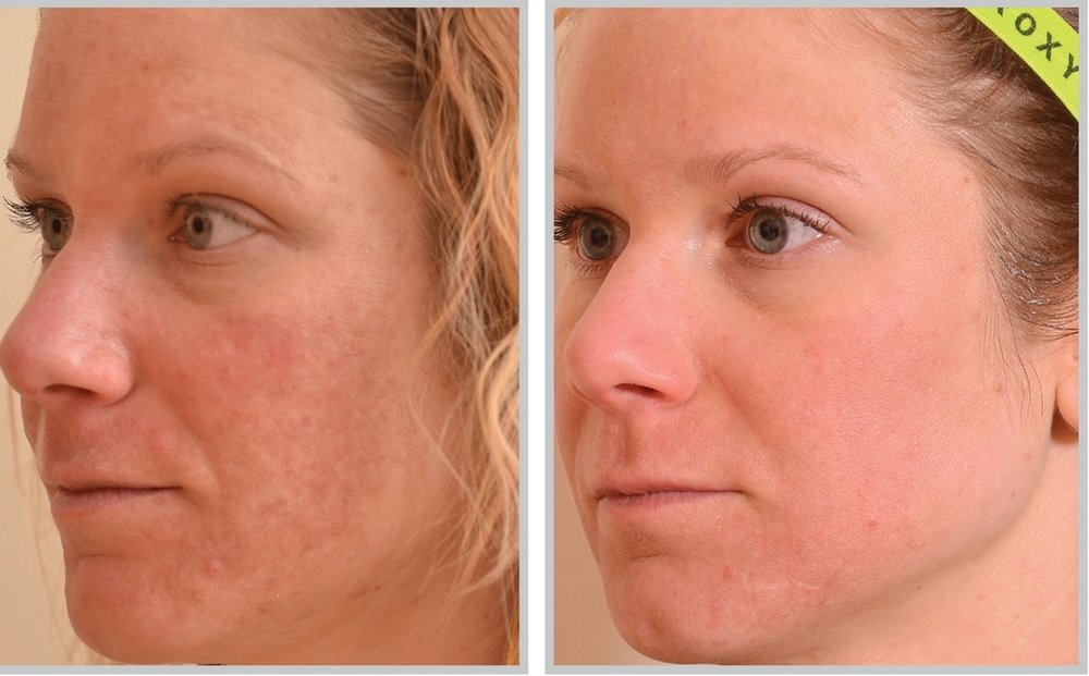 laser skin treatments in atlanta