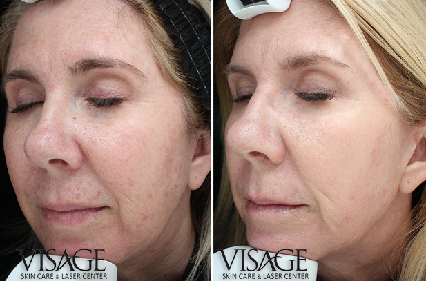 bbl-before-after-3xtreatments-20