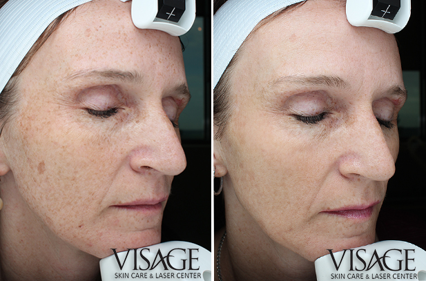 bbl-before-after-3xtreatments