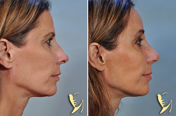 browlift and rhinoplasty-1350
