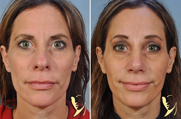 browlift and rhinoplasty-1450