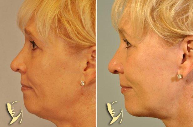 chin-implant-1