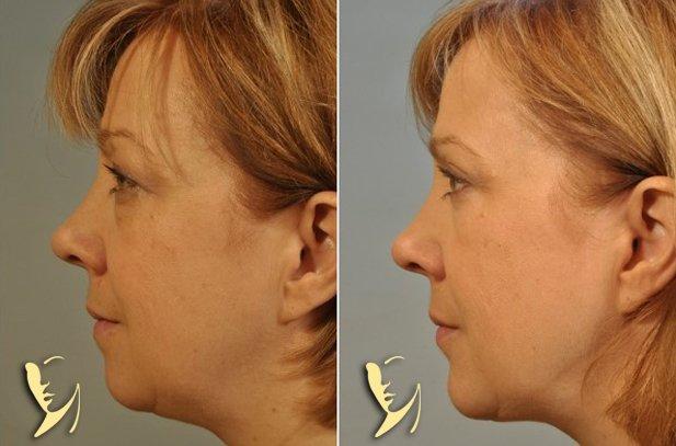 chin-implant-10
