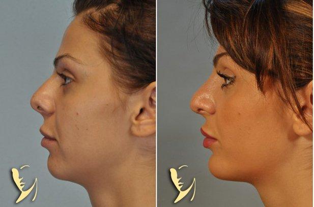 chin-implant-11