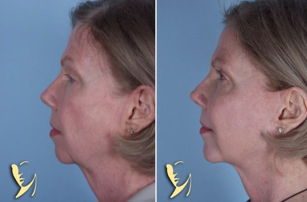 chin-implant-12