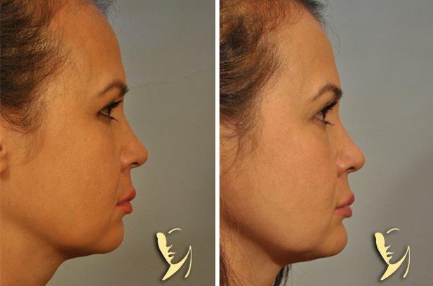 chin-implant-13