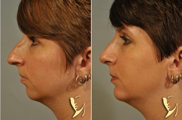chin-implant-2