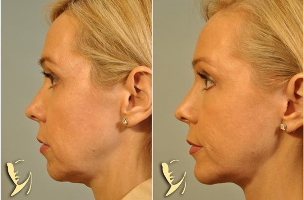 chin-implant-3