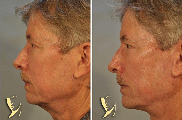 chin-implant-6