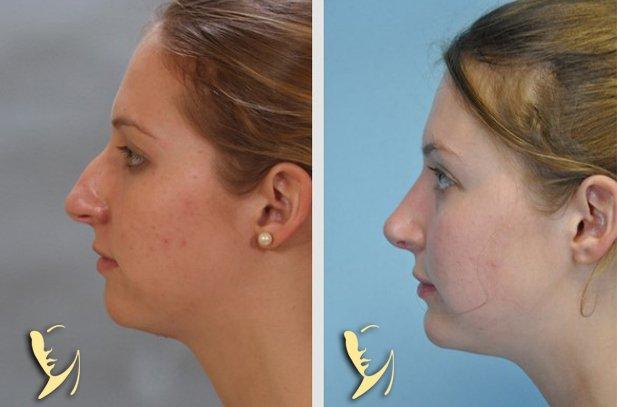 chin-implant-7