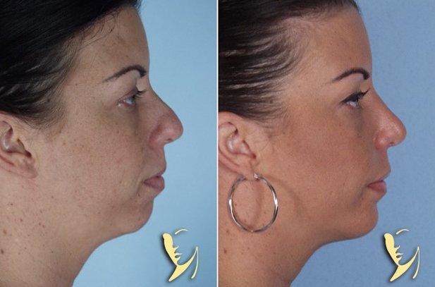 chin-implant-8