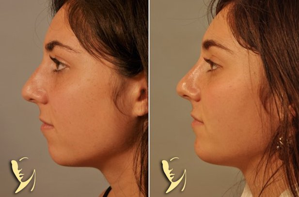 chin-implant-9