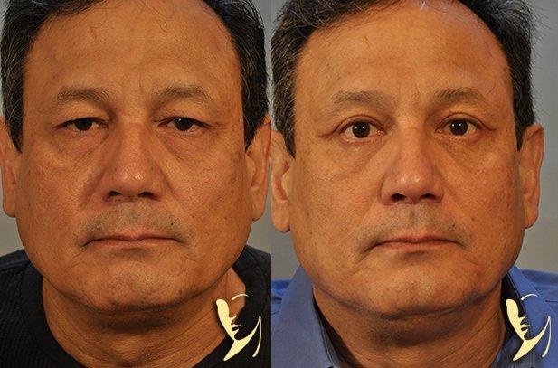 upper-eyelids-25