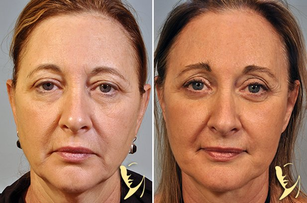 upper-eyelids-33