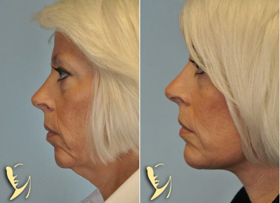 RFPS-facelift-before-after-1