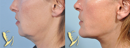 facelift-chin implant-before-after 48