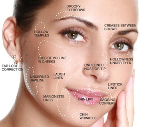 facial-filler-treatment-areas