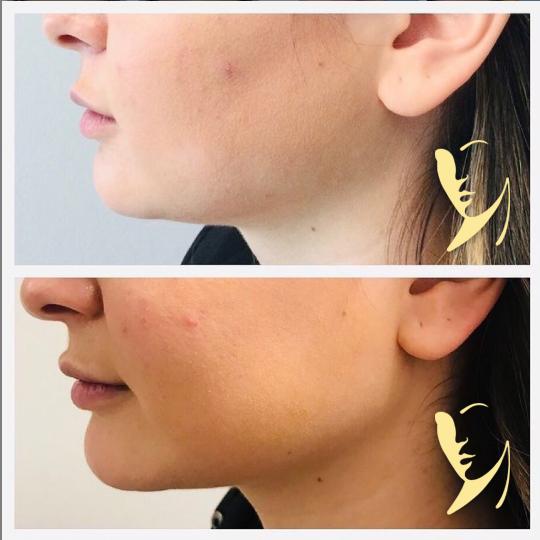 facial-fillers-jawline-contouring