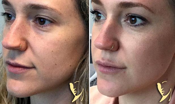 facial-fillers-restylane-refyne-lip-enhancement-mid-cheek-rejuvenation