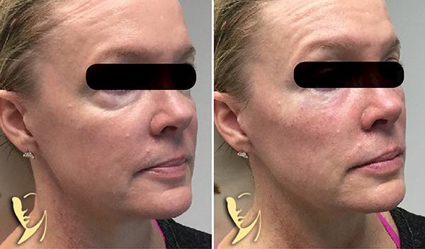 Facial Fillers Cosmetic Injectables Atlanta Ga Dr Burke Robinson