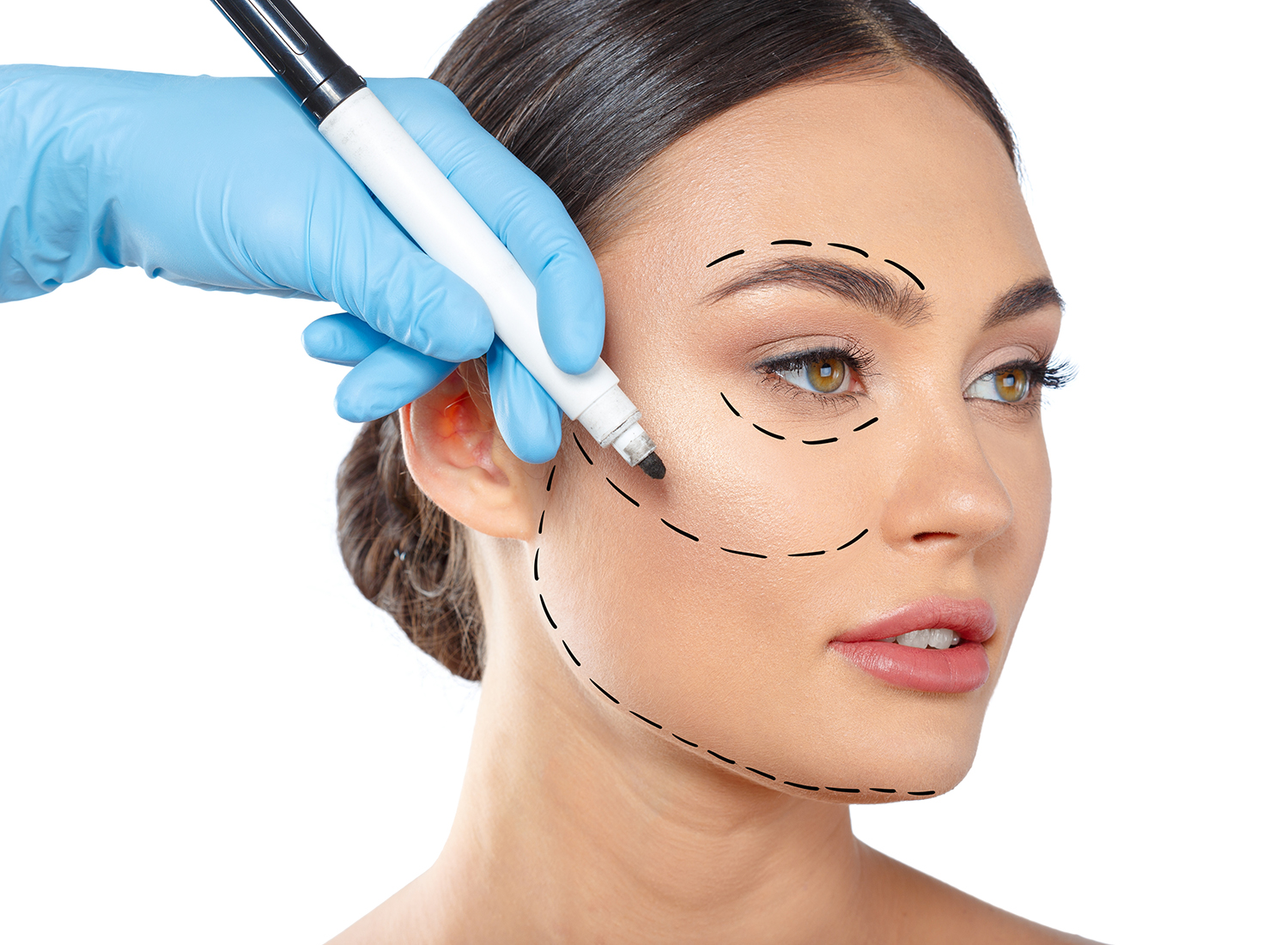 facial plastic surgery image