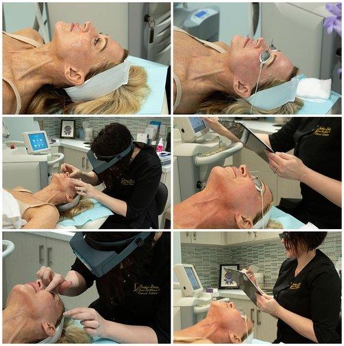 halo-laser-treatment