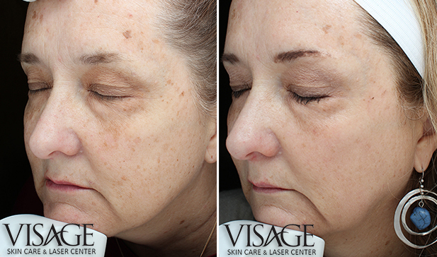 halo-skin-rejuvenation