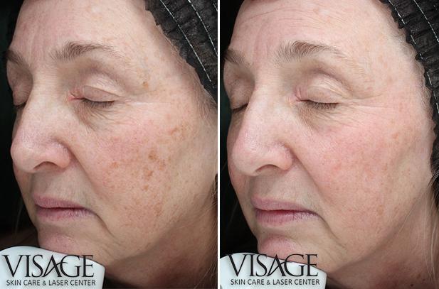 halo-skin-rejuvenation-bbl-before-after-1tx