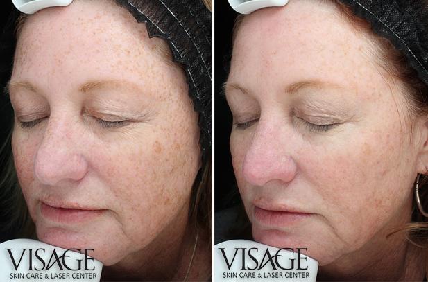 halo-skin-rejuvenation-before-after-1tx