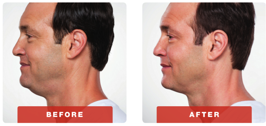 kybella-before-after-1