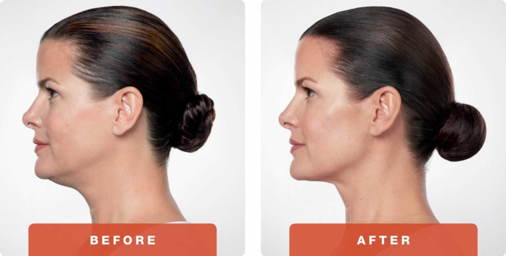 kybella-before-after-3