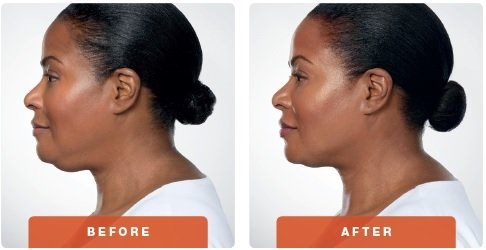 kybella-before-after-4