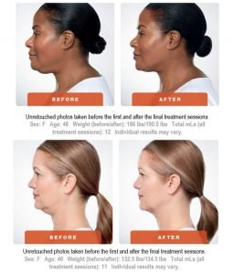 kybella-before-after-6