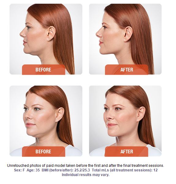 kybella-before-after-7