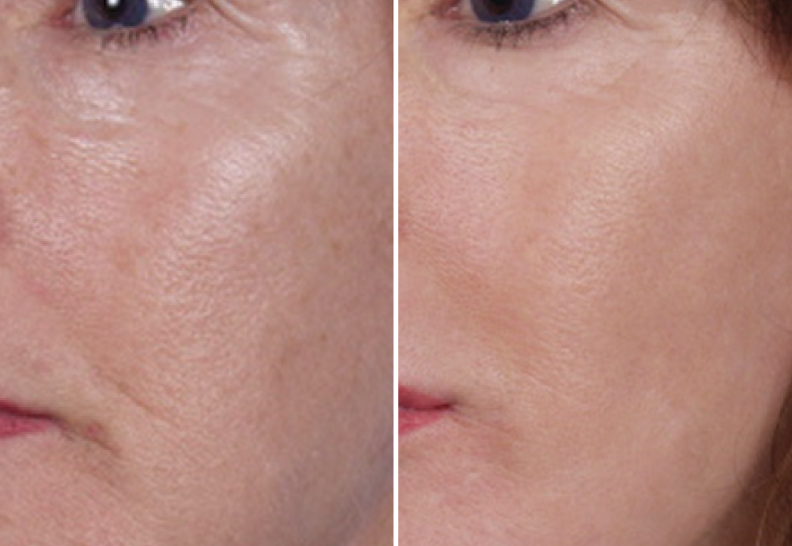 laser peel patient results in atlanta