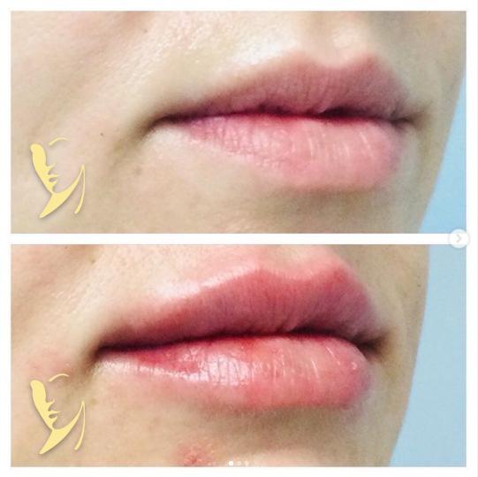 lip-enhancement-IB-4