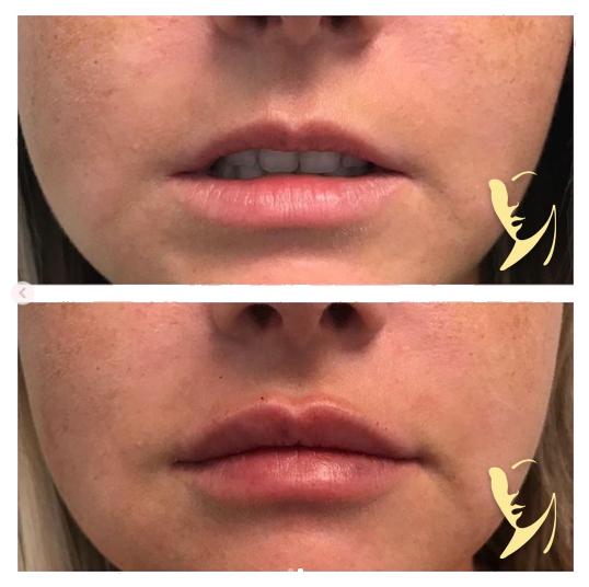 lip-enhancement-RFPS-1
