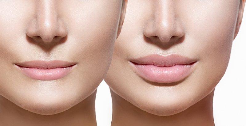 lip enhancement image