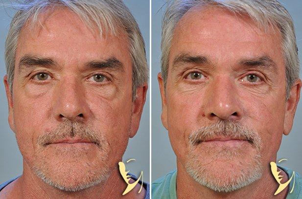 lower-eyelids-16-56