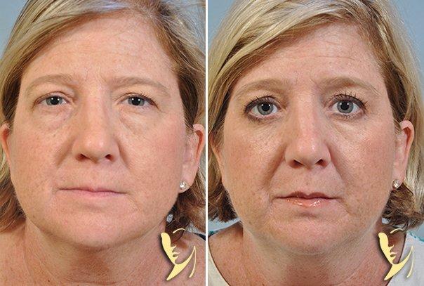 lower-eyelids-blepharoplasty-17