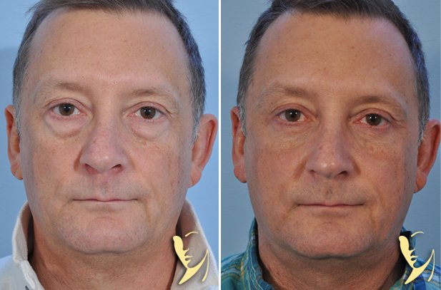 lower-eyelids-blepharoplasty-19
