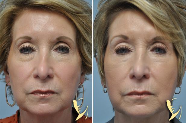 lower-eyelids-blepharoplasty-before-after