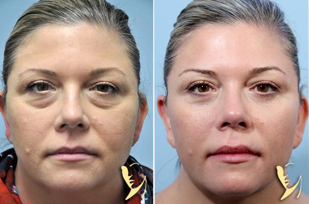 lower-eyelids-lower-eyelid-erbium-laser-before-after